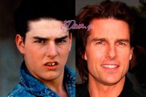 Δείτε το χαμόγελο 10 celebrities πριν & μετά την