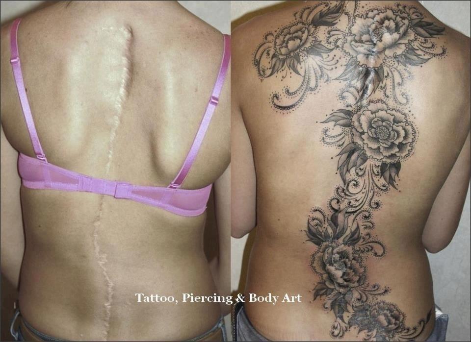 Τατουάζ καλυψης ουλών ediva.gr