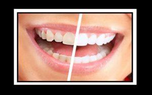 6 Τρόποι για να έχεις λευκά δόντια!