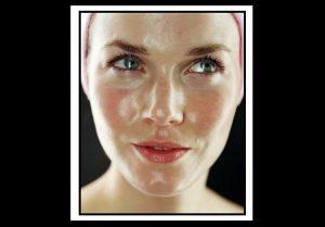 Λιπαρό δέρμα: 7 τρόποι να βελτιώσεις την επιδερμίδα σου!