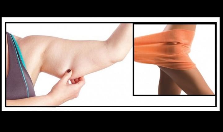 7 Πράγματα που πρέπει να ξέρεις για την λιποαναρρόφηση!