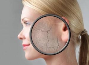 afidatosi dermatos
