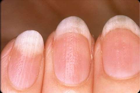 7 Σημάδια στα νύχια που μαρτυρούν ασθένειες!