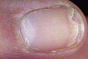 simadia asthenies nixion