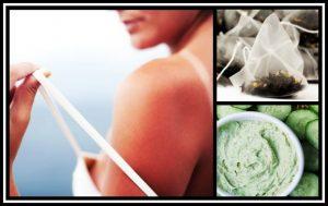 5 Σπιτικές συνταγές για εγκαύματα από τον ήλιο!