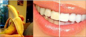 banana peel and teeth