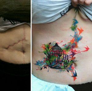 tatouaz rammata koilia ediva.gr