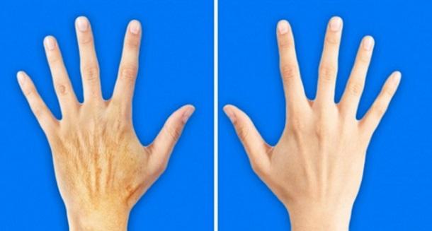 5 Μυστικά για να δείχνουν τα χέρια σου 10 χρόνια νεότερα!