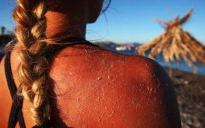 6 Tips για να καταπολεμήσεις το έγκαυμα από τον ήλιο!