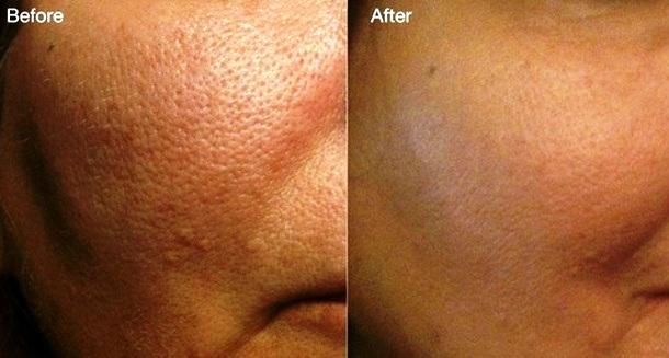 4 Φυσικές μάσκες για τους πόρους του δέρματος!