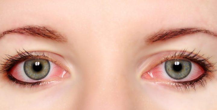 Κόκκινα μάτια και τι σημαίνουν!
