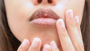 Ποια προϊόντα για σκασμένα χείλη δεν θα πρέπει να χρησιμοποιείς!