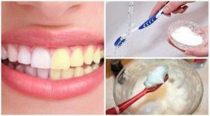Είναι ασφαλές να βουρτσίζεις τα δόντια σου με μαγειρική σόδα;