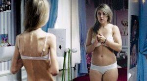 poia einai ta prwta simadia tis nevrikis anorexias, ediva.gr