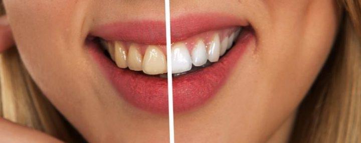 Οι 8 τροφές που λευκαίνουν τα δόντια!