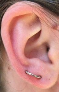orbital- kikloeides piercing