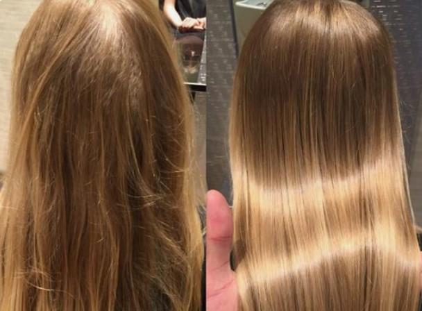 αποτέλεσμα μπότοξ μαλλιών